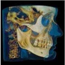 Implant Practice-02