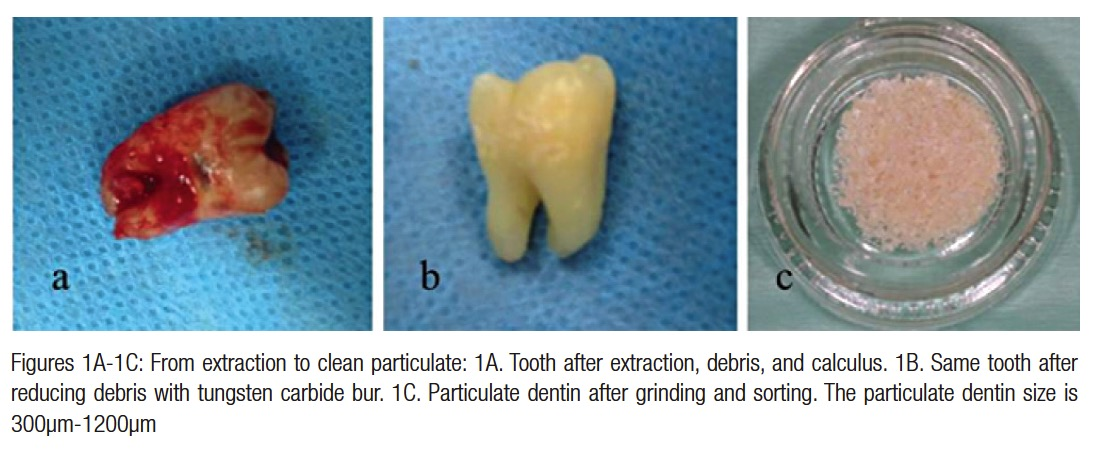 Implant Ce Article Processing Extracted Teeth For Immediate Grafting Of Autogenous Dentin
