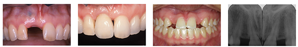 Figure 16: Excessive mesiodistal space in the region of the tooth requiring an implant restoration; Figure 17: Implant restoration in the region of the right central incisor. Note absence of interdental papilla as a result of inadequate support of the soft tissue by the restoration; Figure 18: Clinical presentation of patient with congenitally missing maxillary lateral incisors post orthodontic treatment; Figure 19: Radiograph of patient in Figure 18 revealing that there is insufficient interradicular space for implants