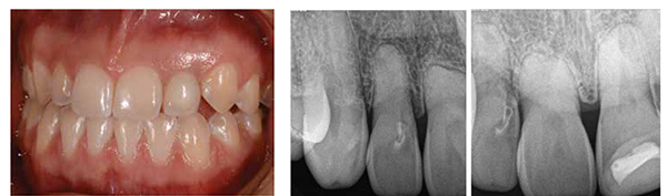 Figure 9: Natural emergence profile, ceramic color matching, and mature soft tissue with ideal root eminence, full papilla, and stippled gingival surface texture. (Kaz RDT Dental Laboratory); Figures 10A-10B: A. Patient presented with thick soft tissue, minimal recession, and a high smile. B. Root blunting with internal resorption teeth Nos. 7, 8, and 9