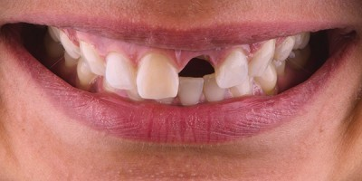 Case study: immediate implant placement and temporization