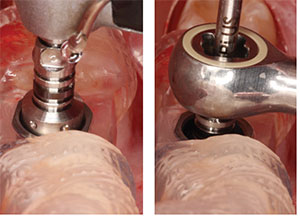Figure 9: Fully guided implant placement with handpiece driver; Figure 10: Fully guided implant placement with ratchet driver