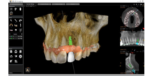 New Workflow from Carestream Dental Improves Predictability, Gives Doctors More Confidence When Placing Implants