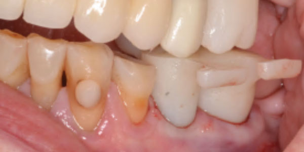 Preserving and perfecting the gingival emergence profile