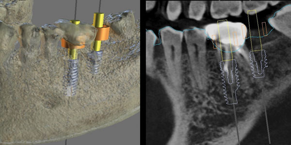 Considerations for guided immediate implant placement